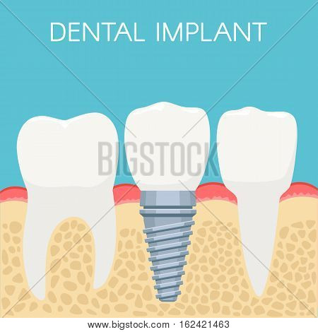 Anatomy of human teeth and Dental implant. Stomatology prosthesis, implantation concept. Vector illustration for web design, poster or advertising brochure