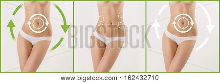 Women belly with the drawing arrows on it on white. Fat lose, liposuction and cellulite removal concept. Collage