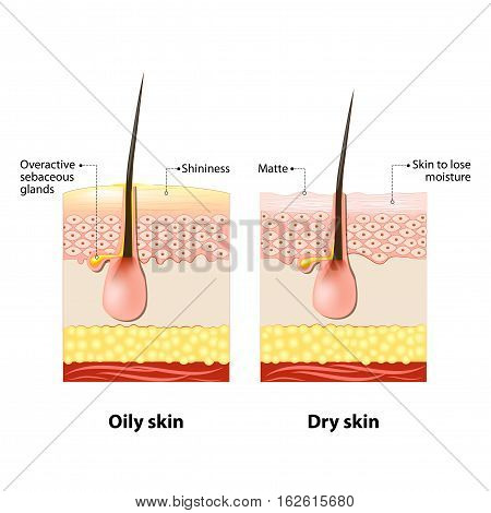 Oily & dry skin. Different. Human Skin types and conditions. A diagrammatic sectional view of the skin.