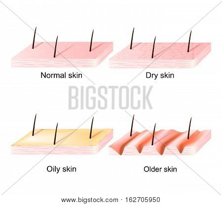 Normal dry and oily younger and older skin. Different. Human Skin types and conditions. sectional view.