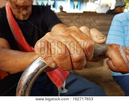 closeup hands of asian old man suffering from leprosy Thailand