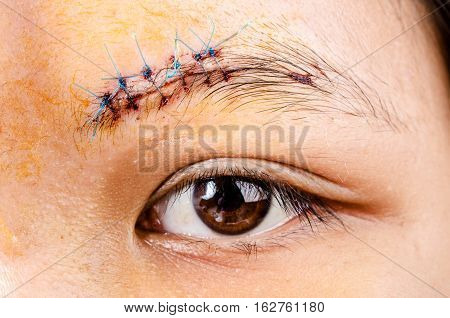 scar form stitched up skin after an operation with a blue fiber at eyebrow area poster