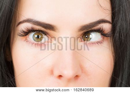 Crazy Female Eyes With Strabismus