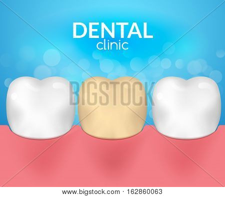 Dental desease clinic concept. Tooth healthcare hygiene. Toothache need dentist.