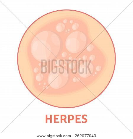 Herpes On The Skin. Healthcare And Dermatology