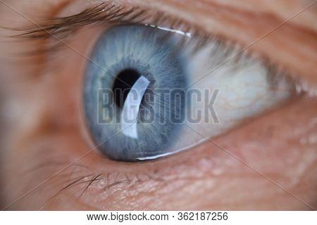 Male Eye Blu Color Super Macro Closeup Shot. Laser Vision Correction And Cataract Treatment Concept