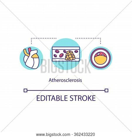 Atherosclerosis Concept Icon. Cholesterol Plaque In Coronary Artery Idea Thin Line Illustration. Car