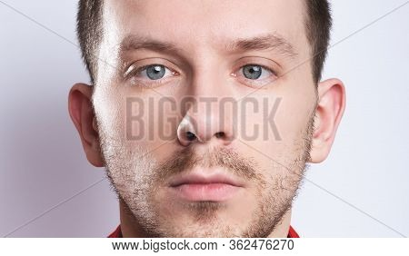 Strabismus In A Man On Grey Background