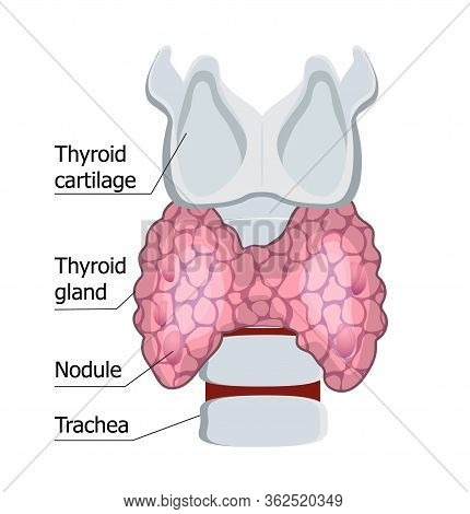 Human Thyroid Gland Isolated On The White Background. Hypothyroidism Concept Vector. Endocrinology D