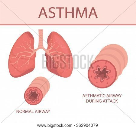 Lungs Asthma1