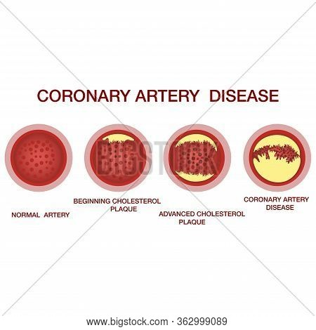Coronary Artery Disease Concept. Healthy And Narrowed Arteries With Plaques