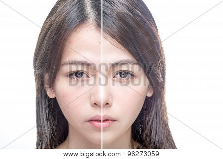 Before And After Beauty Portrait