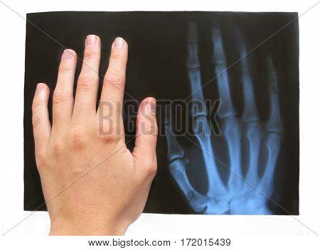 roentgen medical special copy of a broken hand