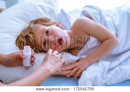 Child with chickenpox in the hospital !