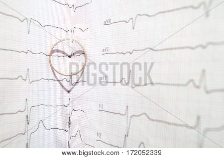 Ring with shadow like a heart on an electrocardiogram sheet