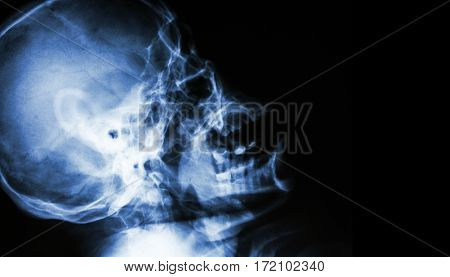 Film X-ray of normal human skull . lateral view . blank area at right side .