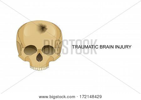 vector illustration of traumatic brain injury. damage to the bones of the skull