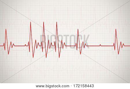 Irregular Heartbeat Illustration