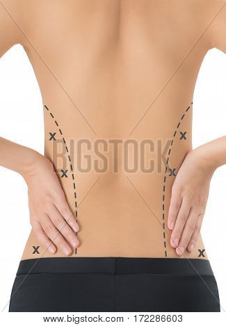 woman posing back side with black color crosses marking on her flanks Lose weight and liposuction cellulite removal concept Isolated on white background.