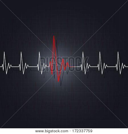 Arrhythmia Of A Heart
