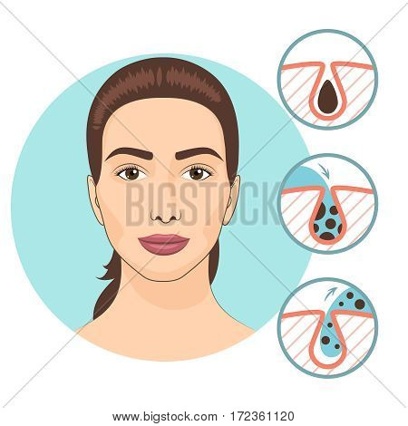 Woman facial treatments. Skin problems and face care vector illustration. Facial problem, cosmetology for face