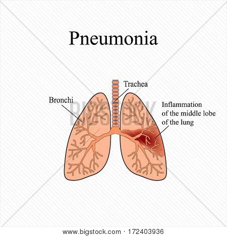 Pneumonia. The anatomical structure of the human lung. Inflammation of the middle lobe of the lung. Vector illustration.