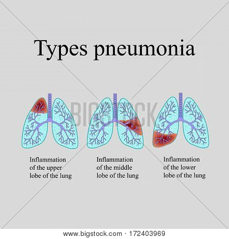 Pneumonia. The anatomical structure of the human lung. Type of pneumonia. Vector illustration on a gray background.