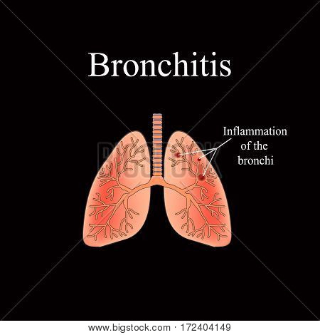 Bronchitis. The anatomical structure of the human lung. Vector illustration on a black background.