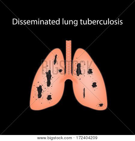 Disseminated tuberculosis. Infographics. Vector illustration on a black background.