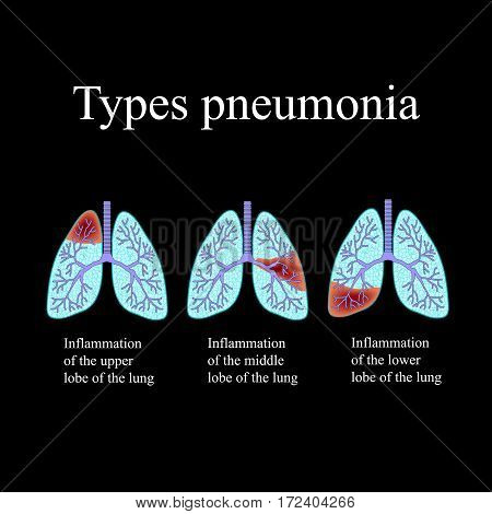 Pneumonia. The anatomical structure of the human lung. Type of pneumonia. Vector illustration on a black background.