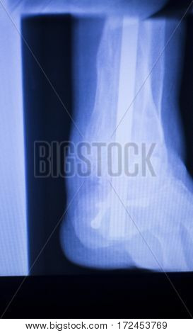 Xray Foot Heel Ankle Scan