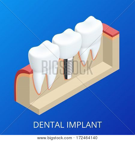 Isometric Tooth human implant. Dental concept. Human teeth or dentures. 3d illustration Isolated.
