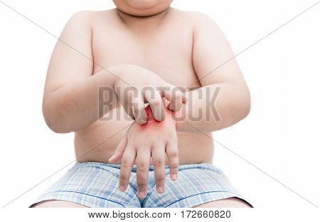 Obese Fat Boy Scratch The Itch With Hand. Itching Isolated
