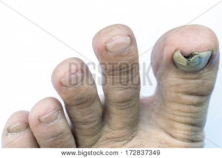 Close up image of man's left foot suffering from toenail fungus with torn or detached nail. Isolated on white background with clipping path.