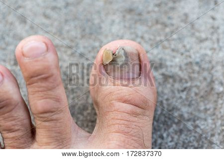 Close up image of man's left foot suffering from toenail fungus with torn or detached nail.