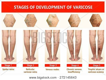 Varicose Veins On A Female Senior Legs. The Stages Of Varicose Veins. The Old Age And Sick Of A Woma