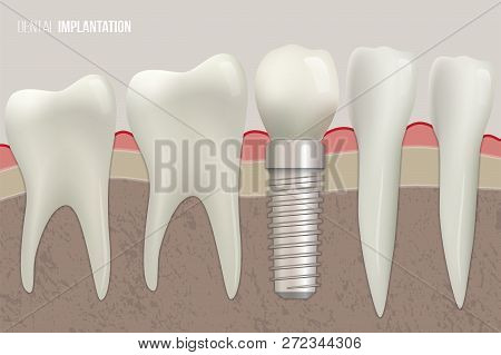 Dental Implantation Vector Illustration. Sound Teeth And Dental Implant On Medical Illustration.