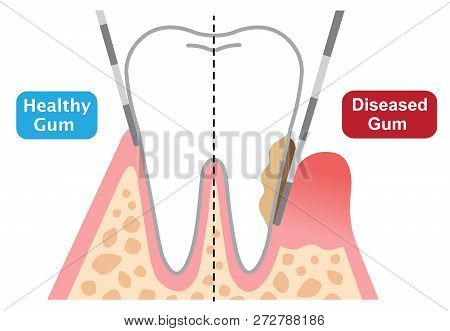 Periodontal Probing Depth Showing Healthy And Diseased Gum. Dental And Health Care Concept