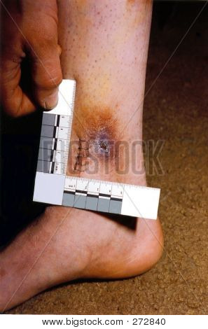 Personal Injury With Scale