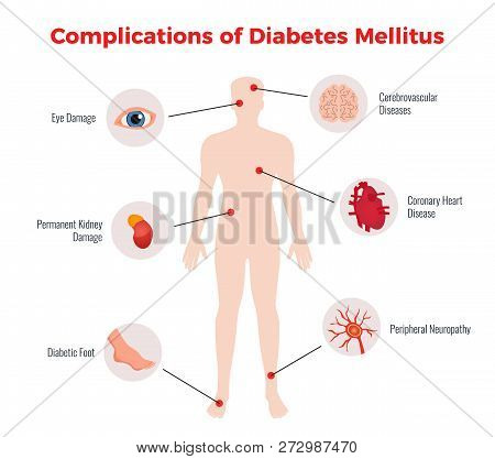 Diabetes Complications Medical Educational Chart Poster With Affected Human Organs Damages Depiction