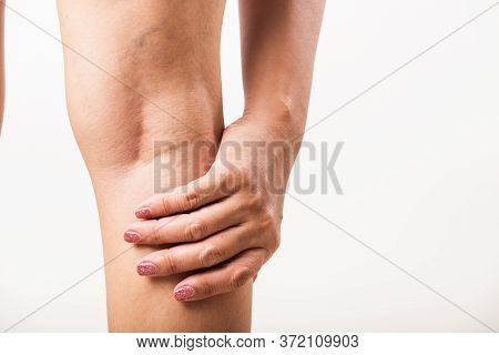 Closeup Young Asian Woman Painful Varicose And Spider Veins On Leg, Studio Shot Isolated On White Ba