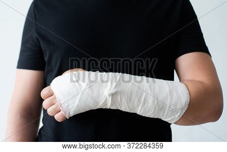 A Broken Hand In A Gypsum Bandage. Painful Heavy Movements Of Broken Finger Hands Close-up