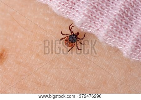 Infected Tick On Human Skin. Carrier Of Infections Of Encephalitis Disease And Lyme Borreliosis. Par