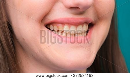 Female Yellow Teeth, Fluorosis. Smokers Problem Teeth Caused By Fluoride, Smoking, Or Coffee. Brown
