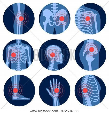 Human Man Skeleton Pain, Fracture Or Inflammation, Parts Of Male Body On X Ray View. Vector Isolated