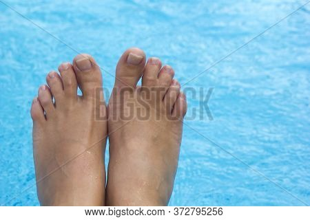 Top View Of Female Legs With Fused Middle Toes On Blue Pool Background. Webbed Toes Genetic Disorder