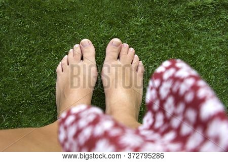 Top View Of Female Legs With Fused Middle Toes On Green Grass Background. Webbed Toes Genetic Disord