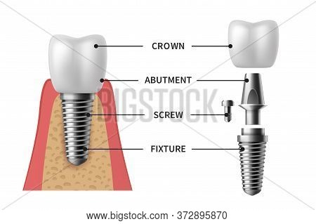 Tooth Implant. Realistic Implant Structure Pictorial Models Crown. Abutment, Screw Denture Orthodont