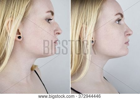 Photos Before And After Plastic Surgery To Correct The Nasal Septum. A Woman Who Has Had Rhinoplasty