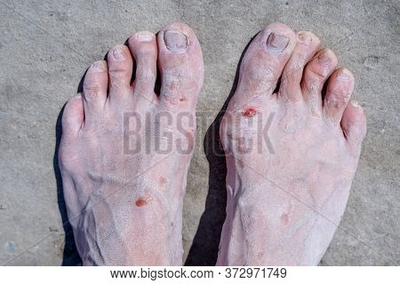 Bare Feet Of Men In The Pink Salt Lake. Salt Deposit. Treatment Of Wounds With Salt. Healing Propert